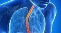 """Эзофагит: лечение в клинике """"Эндос"""