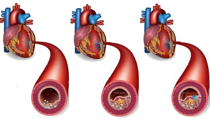 Ишемическая болезнь сердца. Атеросклероз коронарных артерий