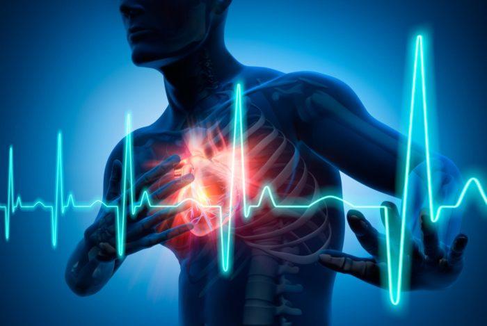 Диагностический центр Эндос: основной метод диагностики при инфаркте миокарда является электрокардиограмма
