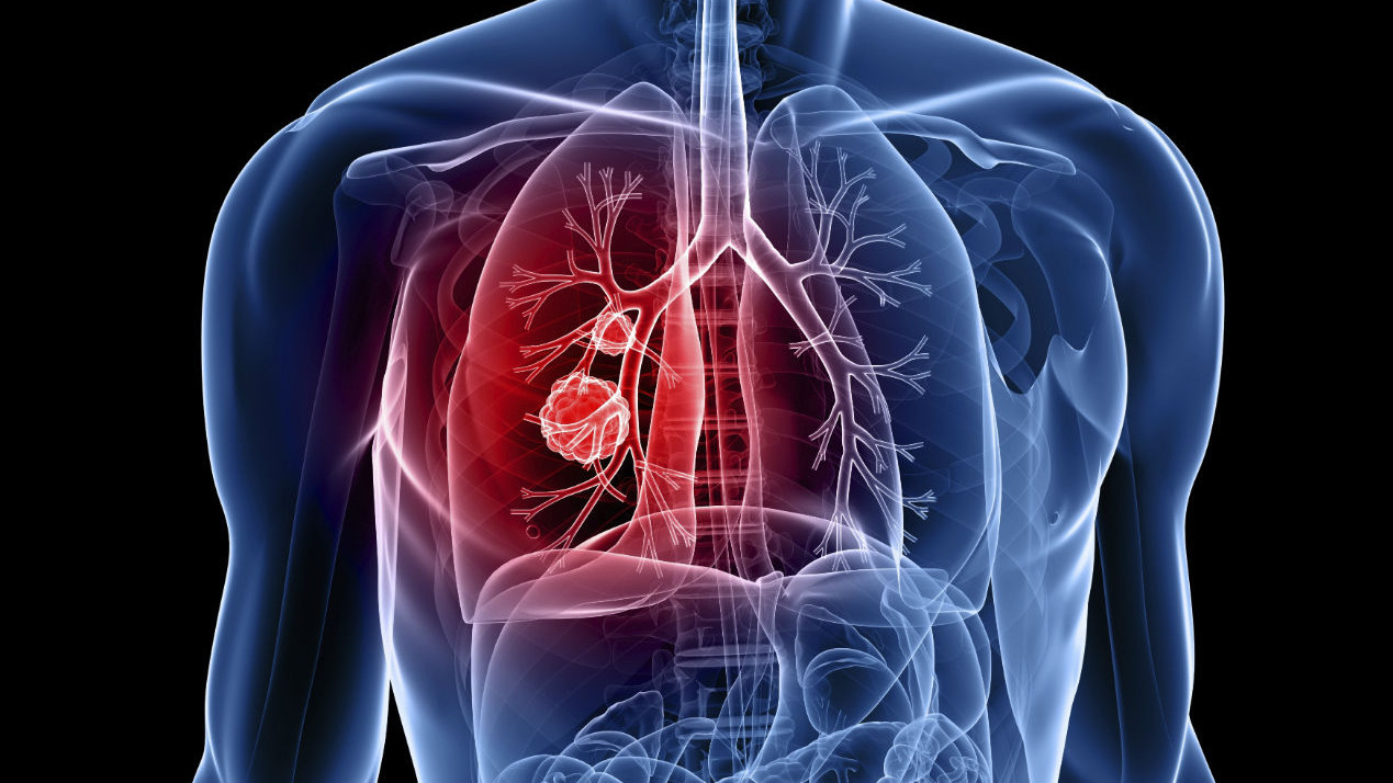 Эмфизема легких: причины и профилактика