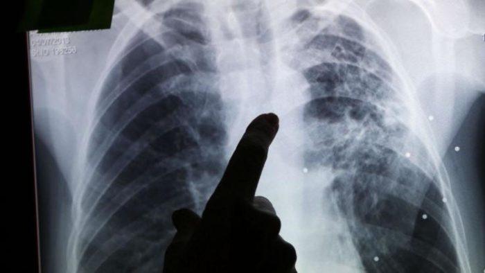 Рентген-диагностика туберкулеза легких