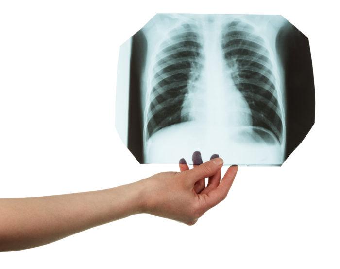 Рентгенологическое обследование грудной клетки при бронхите в диагностическом центре Эндос