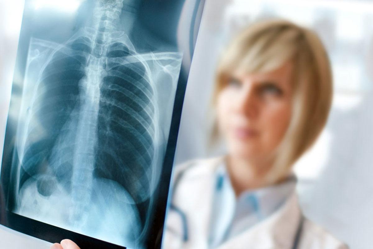 Рентгенография легких в диагностике эмфиземы