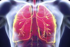 Туберкулез легких: опасности, диагностика и профилактика. Основной метод диагностики - флюорография