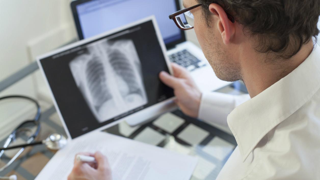 Острая пневмония: симптомы, осложнения, факторы риска