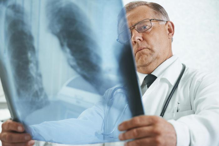 рентгенологическое обследование органов грудной клетки при подозрении на острую пневмонию