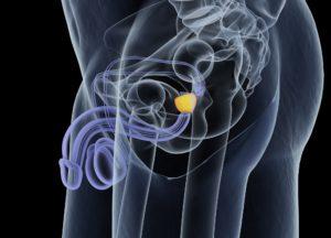 Информативность метода ультразвуковой диагностики при обследовании простаты