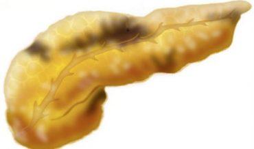 Острый и хронический панкреатит: отличия, симптомы, диагностика, принципы лечения