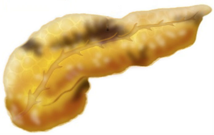 Острый панкреатит и панкреонекроз, рисунок, Medclic