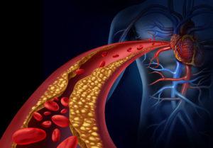 Атеросклероз артерий сердца, рисунок. Medclic.ru