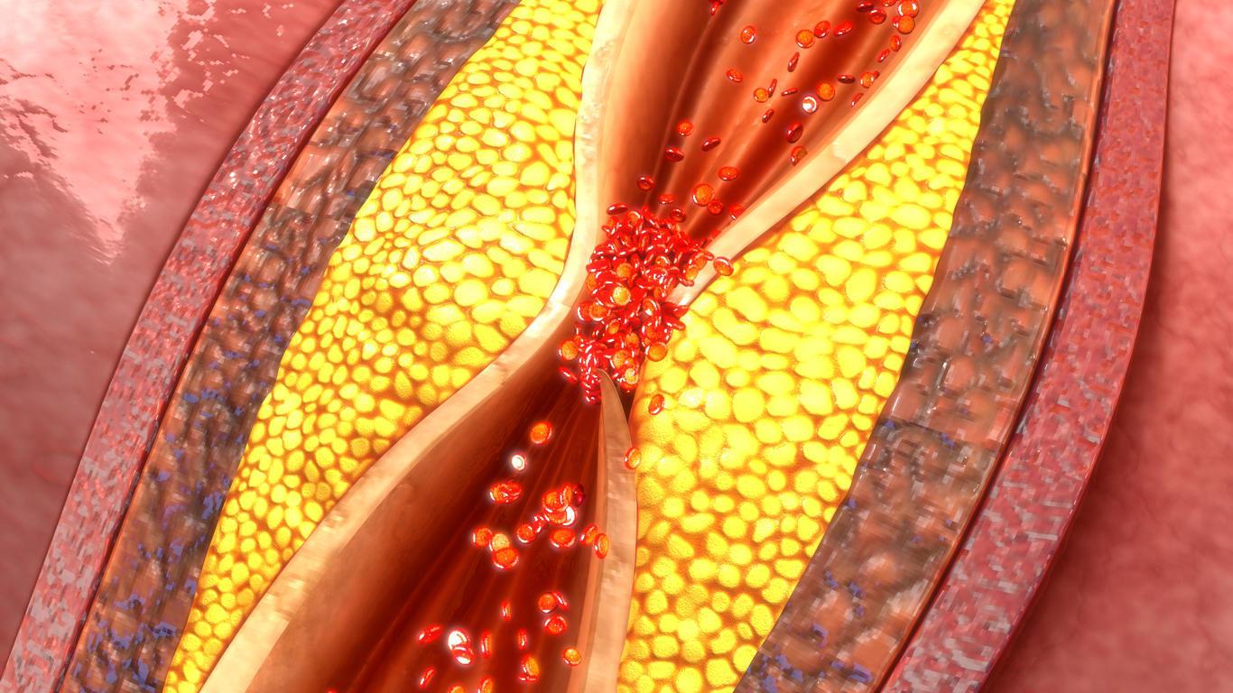 Сужение просвета сосуда атеросклеротической бляшкой. Схематическое изображение