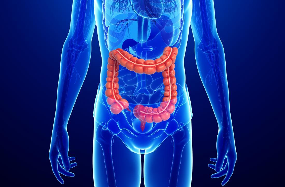 Диаграмма толстого кишечника: болезнь Крона и неспецифический язвенный колит. Клиника Эндос.