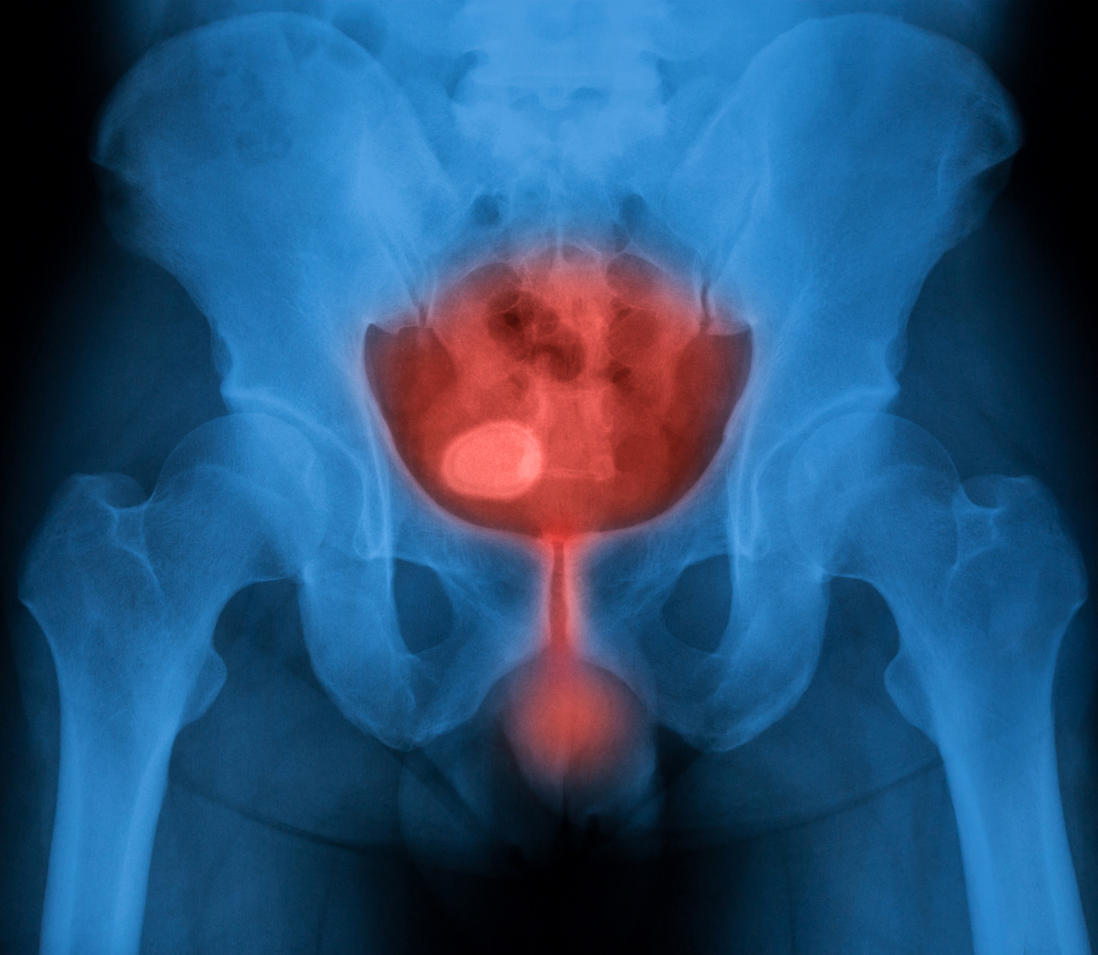 Причины, симптомы и лечение цистита