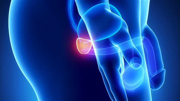 Простатит: воспаление предстательной железы