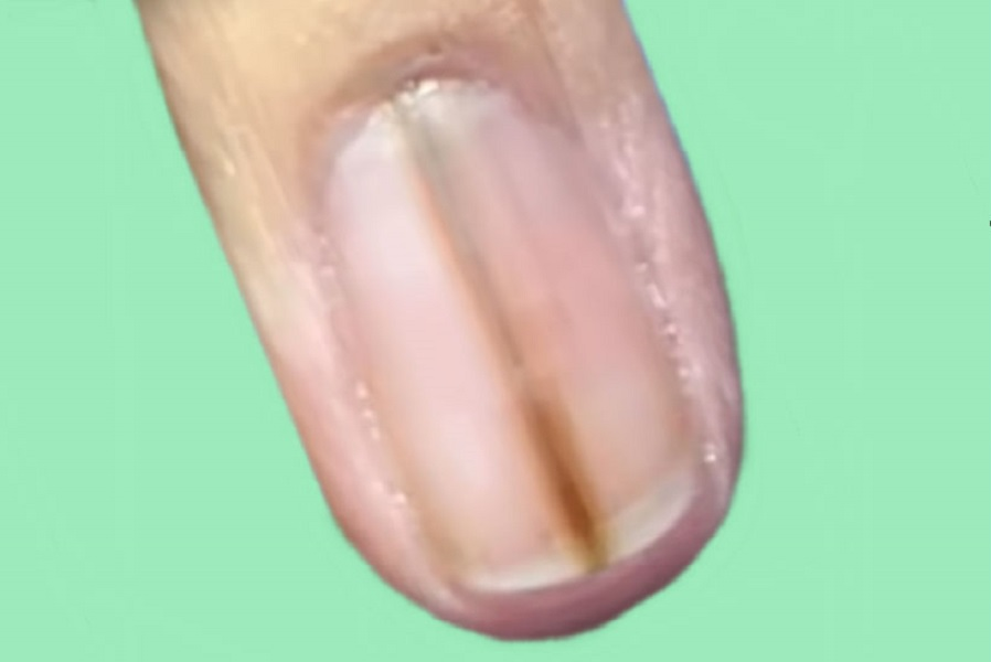 Меланома ногтевого ложа на начальной стадии, выглядит как пигментированная полоска, энциклопедия Medclic.ru