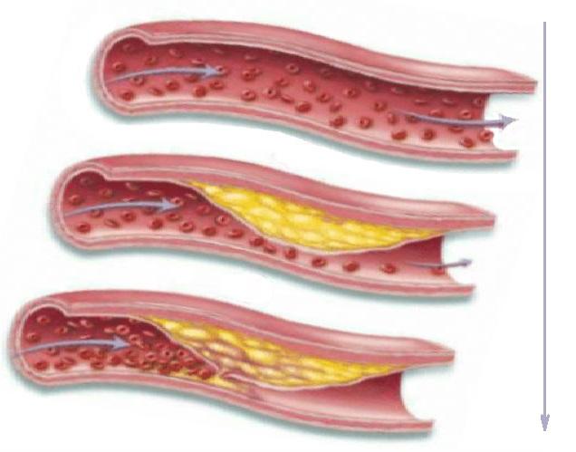 Обтурация просвета артерии атеросклеротической бляшкой, рисунок. Medclic.ru