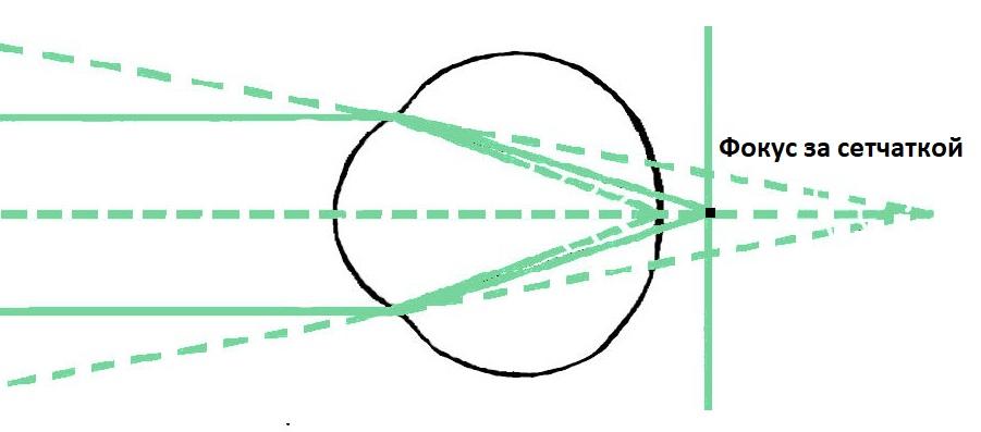 Схема фокусировки рассматриваемых предметов за пределами сетчатки при дальнозоркости, энциклопедия Medclic.ru