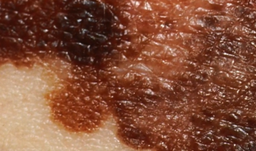 Меланома: клиническая классификация