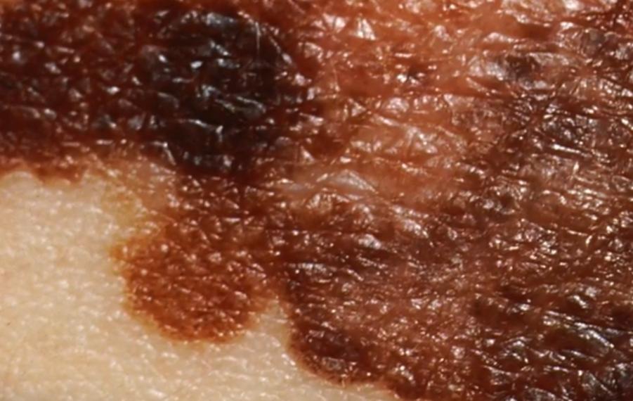 Неравномерная пигментация поверхности невуса при меланоме, энциклопедия Medclic.ru