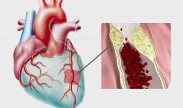 Ишемическая болезнь сердца (ИБС): этиология, патогенез