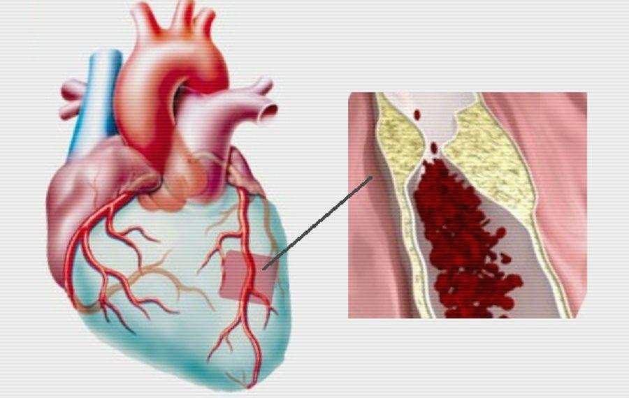 Стеноз коронарной артерии, изображение к статье о патогенезе ИБС, медицинская энциклопедия