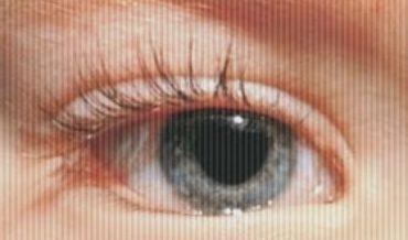Заворот века: причины, симптомы, первая помощь, лечение