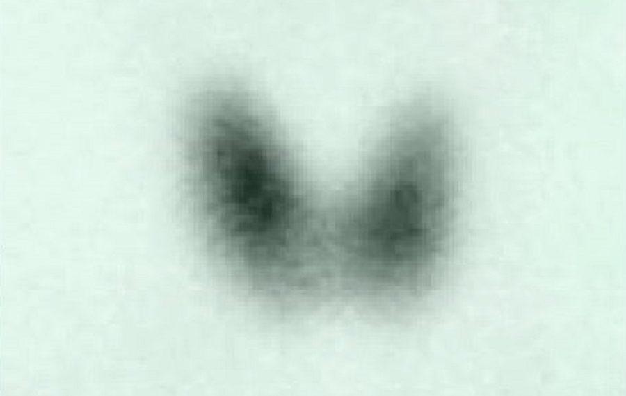 Изображение сцинтиграфии щитовидной железы к статье о тиреоидитах, медицинская энциклопедия resursor.ru
