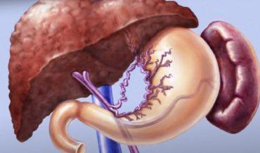 Цирроз печени: этиология, патогенез, клиническая классификация