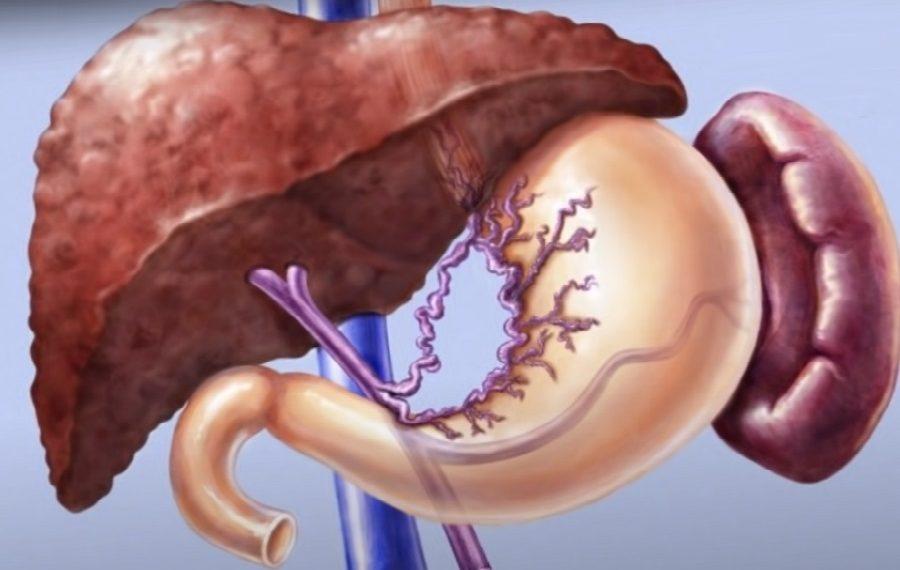 Цирроз печени, изображение к статье по патогенезу и классификации циррозов, resursor.ru