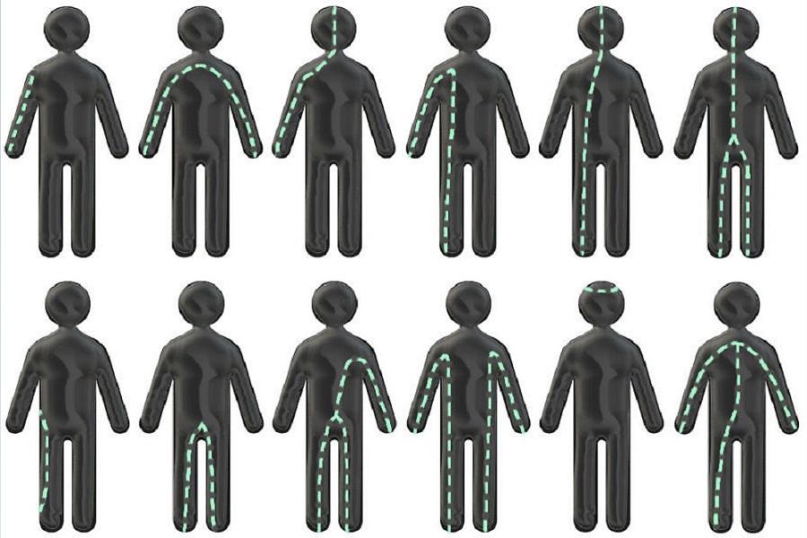 Петли тока или пути прохождения электрического тока через организм, энциклопедия Medclic.ru