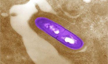 Инфекционные болезни: определение, общие признаки