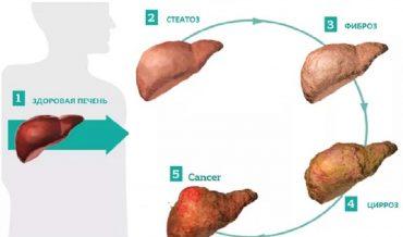 Цирроз печени: причины и этиологическая классификация