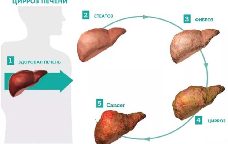 Изображение показывающее прогрессию процесса фиброза печени