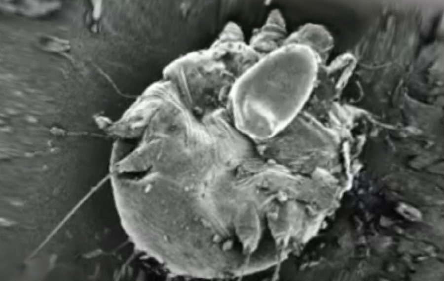 На фото чесоточный клещ при микроскопии, медицинская энциклопедия resursor.ru