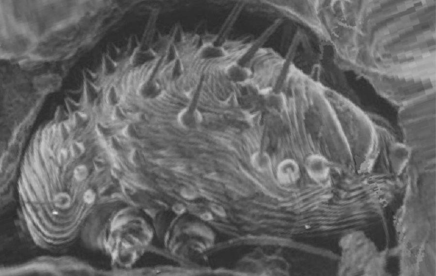 На фото чесоточный клещ в кожном ходе на микроскопии, медицинская энциклопедия resursor.ru
