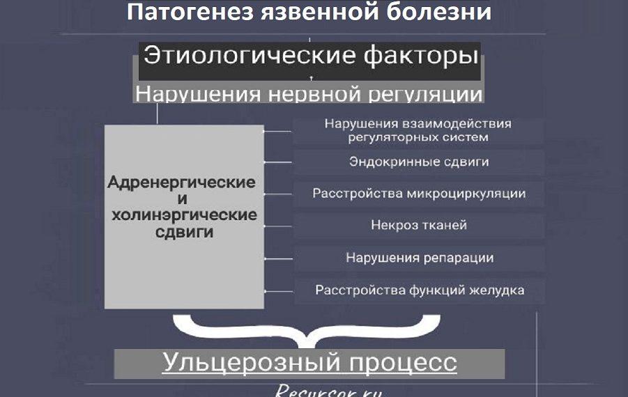 Иллюстрация к статье этиология и патогенез язвенной болезни