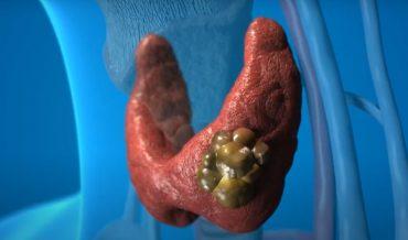 Заболевания щитовидной железы: классификация