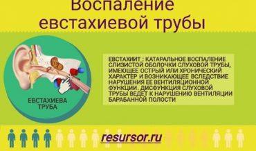 Воспаление евстахиевой трубы (евстахиит)
