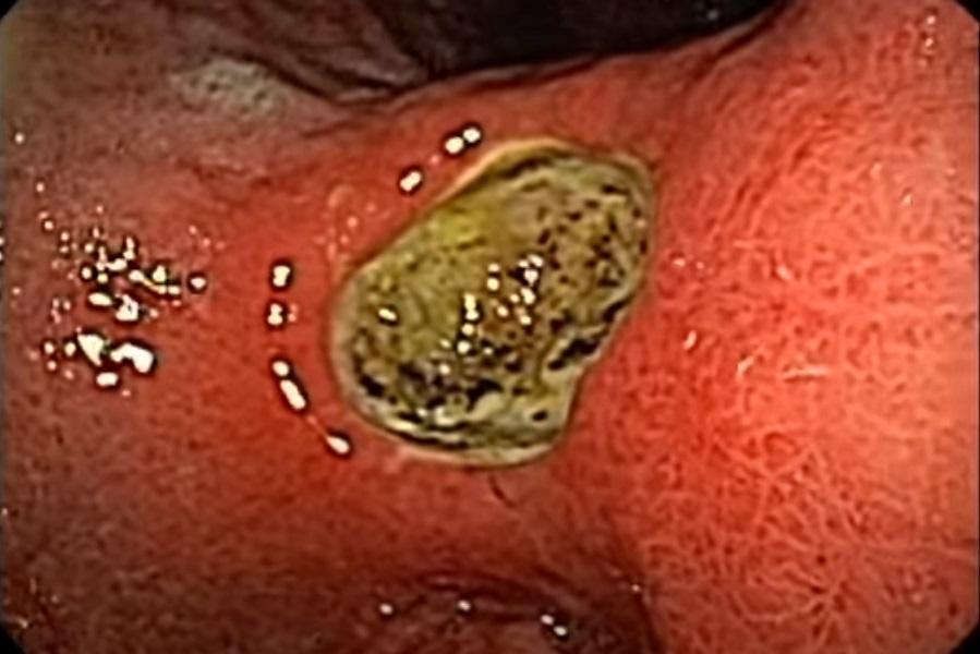 Внешний вид язвы желудка, осмотр при фиброскопии, медицинская энциклопедия resursor.ru