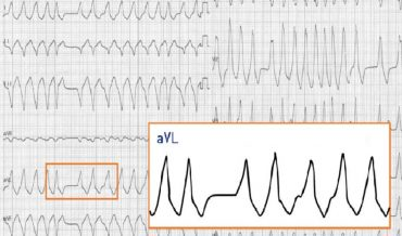 Риск рецидива фибрилляции предсердий у больных ишемической болезнью сердца и артериальной гипертензией по данным холтеровского мониторирования ЭКГ