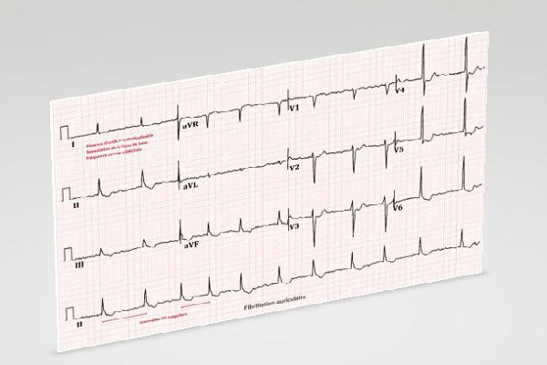 Взаимосвязь психологических особенностей больного с течением заболеваний сердца на примере фибрилляции предсердий