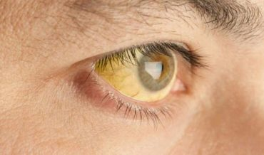 Синдром Жильбера и другие виды конституциональных желтух