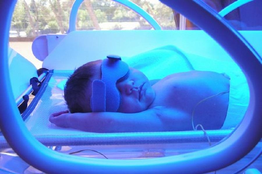Новорожденному с желтухой проводится фототерапия, медицинская энциклопедия resursor.ru
