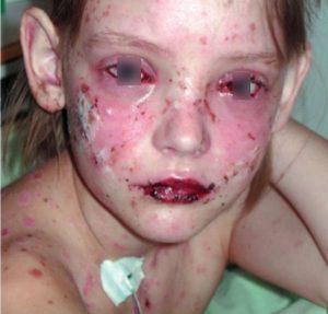 Фото пациента с синдромом Стивенса-Джонсона