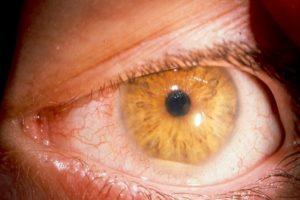 На фото гнойный иридоциклит или передний увеит с гнойным экссудатом на дне передней камеры глаза, медицинская энциклопедия resursor.ru