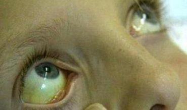 Печеночные (паренхиматозные) желтухи: причины, механизмы, принципы диагностики