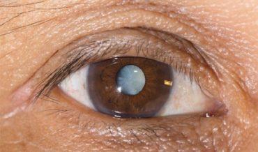 Возрастная катаракта: виды, стадии развития, симптомы