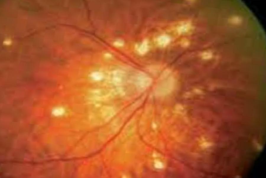 Офтальмоскопия, вид глазного дна при мультифокальном хориоидите, папиллите, медицинская энциклопедия Ресурсор