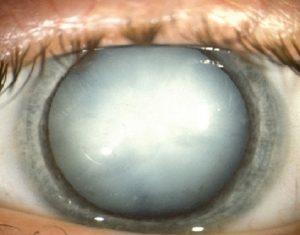 Изображение молочной катаракты, медицинская энциклопедия РЕСУРСОР