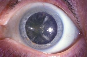 На фото изменения хрусталика на стадии незрелой катаракты, медицинская энциклопедия РЕСУРСОР